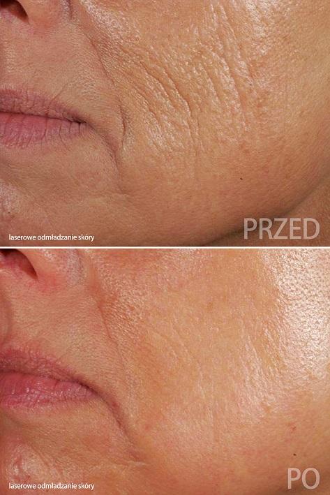 Laser DeLux, laserowe odmładzanie skóry, laserdelux.pl